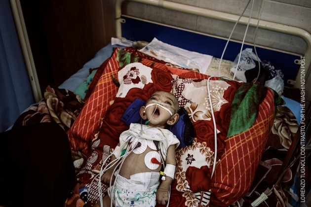 Taif Fares gasps for air in the intensive-care unit at al-Sadaqa hospital, Aden, on 21 May. She had a heart disorder and required constant care. Supplies of oxygen and medicine to the hospital had been discontinued, and, on 14 May, a violent confrontation between a member of the militia controlling the hospital and a doctor had led to doctors going on strike. Taif died a few days after the photograph was taken. Yemen Crisis. © Lorenzo Tugnoli, Contrasto, for The Washington Post.