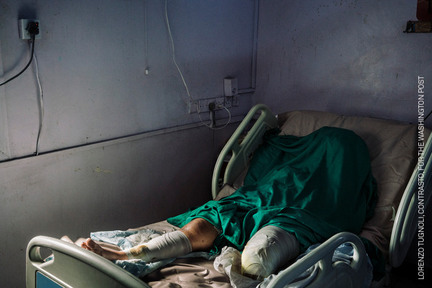 Wafa Ahmed Hathim (25) lost her left leg when a mortar landed on her house in the strategically important Red Sea port of Hudaydah on 8 December—at a time when long-negotiated peace talks were taking place in Sweden. Yemen Crisis. © Lorenzo Tugnoli, Contrasto, for The Washington Post.