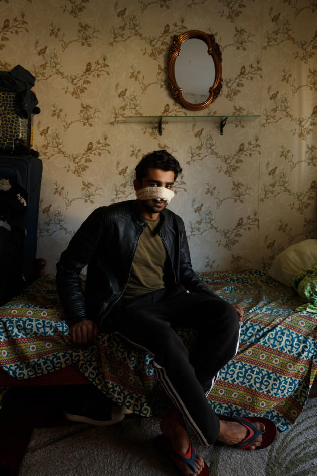 Abdullah in his room 2018 Max Mason-Hubers Digital print Abdullah Qaiser of Pakistan came to Australia to study, because it is a safe place. Abdullah was bashed and racially abused at university in Australia. He agreed to be photographed in his room, bandages covering the remains of his nose.