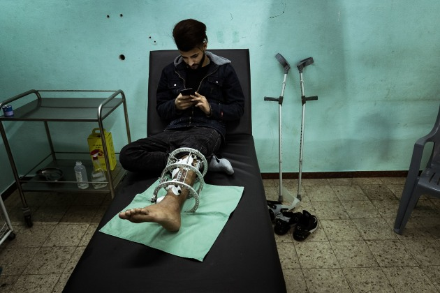 © Darrian Traynor, from the series, 'More than skin deep'. GAZA. 3rd March 2020. 17-year-old Nasser Kheel was injured on 14th January 2019. Nasser says he wanted to go to the Great March of Return because his friends were going and he wanted to try it. He knew the risk, but didn't think he would be a target going for his first time.