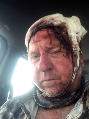Hunter mauled by grizzly bear - Warning graphic images