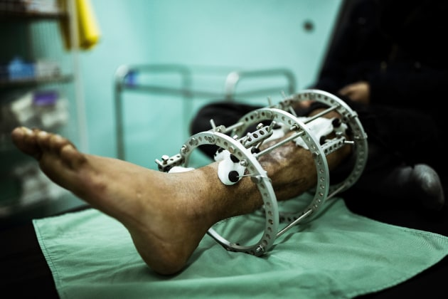 © Darrian Traynor, from the series, 'More than skin deep'. GAZA. 3rd March 2020. Nasser Kheel has his Ilizarov apparatus and wound cleaned at the MSF Clinic in Gaza. Before the injury he had tried to commit suicide by drinking poison because of the oppressive conditions. Nasser still has these thoughts.