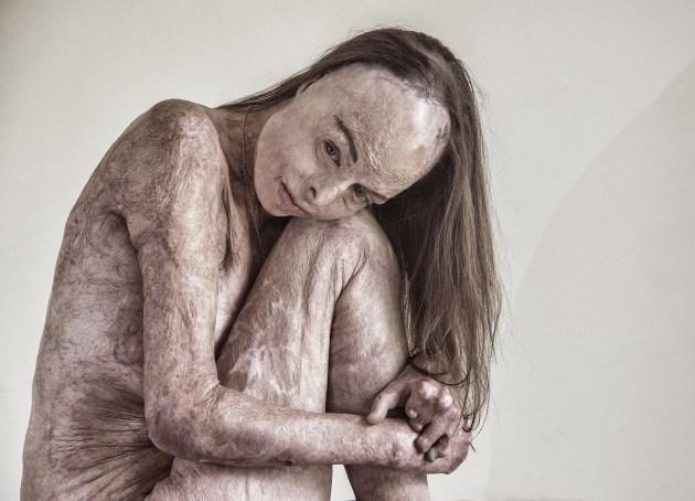 © Brian Cassey - The Skin I'm In